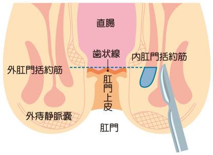 側方皮下内括約筋切開術